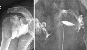angers-radiologie-radiographie-de-contraste